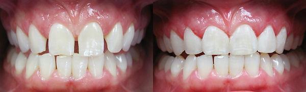 bonding at Jonathan K. Davis, DDS, dentist in Findlay, OH