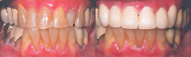 crowns at Jonathan K. Davis, DDS, dentist in Findlay, OH