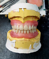 full dentures at Jonathan K. Davis, DDS, dentist in Findlay, OH