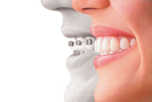 orthodontics at Jonathan K. Davis, DDS, dentist in Findlay, OH