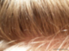 Hair with nits