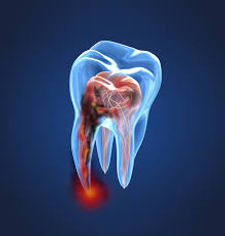 Endodonti.jpg