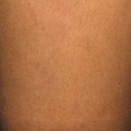 After Spider Veins Treatment