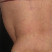 After Spider Veins Removal