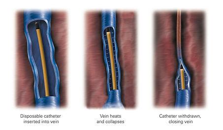 Closure Fast Procedure For Vein