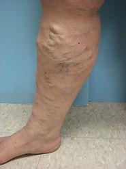 Varicose Veins Before Treatment