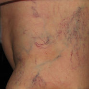 Before Spider Veins Removal