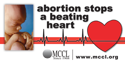 abortion stops a beating heart billboard