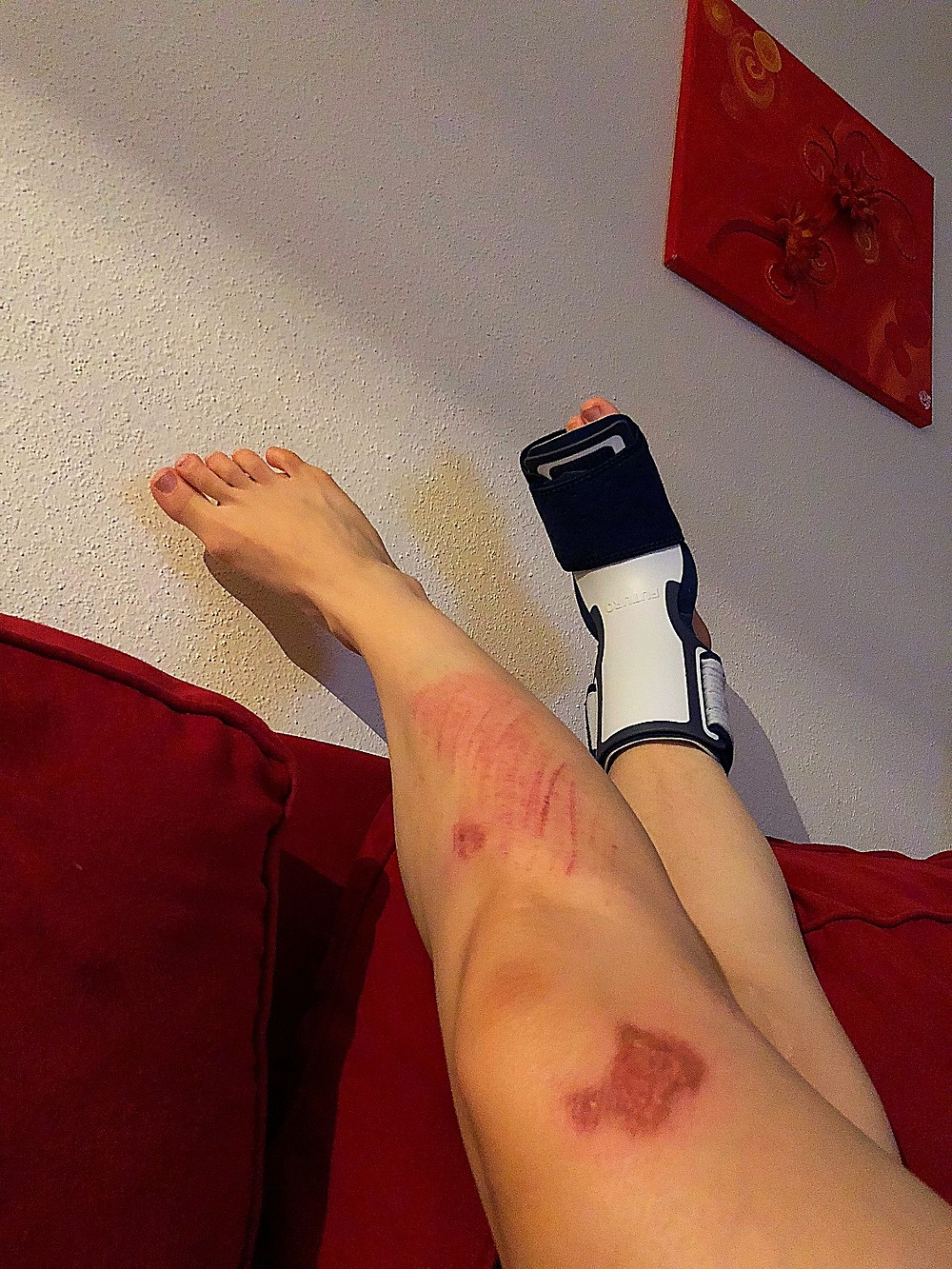 Injure leg with brace boot, bruises and scabs