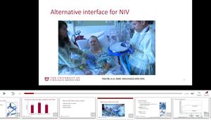 Alternative Interface For NIV