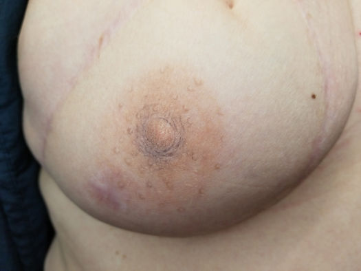 nipple areola restorative tattoo mastectomy breast cancer survivor