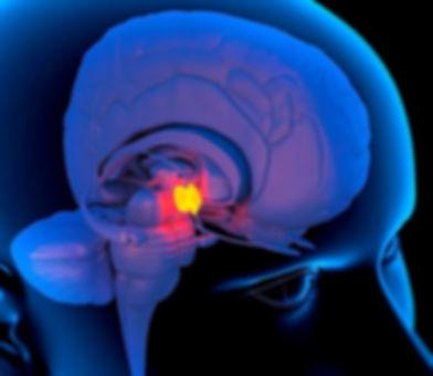 TetraCoach Cerebro.jpg