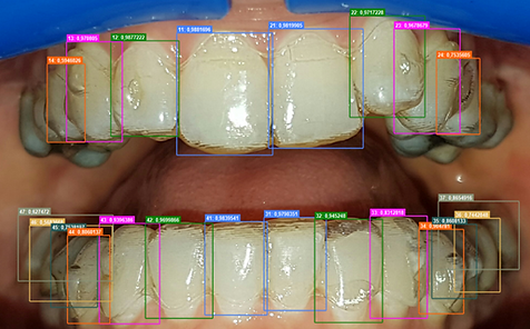 Detecting teeth and aligner fit within a scan.