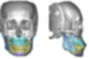 Front and side view of a 3d CBCT scan with different areas of the jaw highlighted