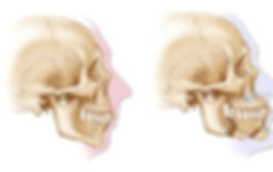 Before and after MMA surgery imag.  Skeletal view with a silhouette of the facial features.