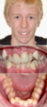 Patient face, front and lower teeth before treatment