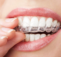 Close up of a woman putting on a clear aligner.
