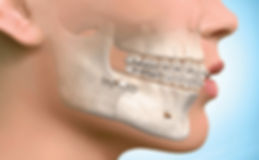 Side view of a transparent face with visible bone, teeth, and braces post surgery