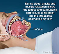 Depiction of sleep apnea: During sleep, gravity and muscle relaxation allows the tongue and surrounding soft tissues to fall back into the throat area obstructing air flow.
