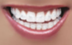 Close up of a person wearing nearly invisible clear braces with a white wire