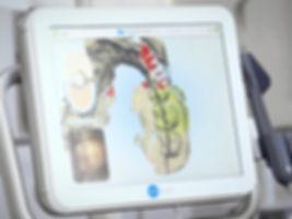 iTero scan in progress