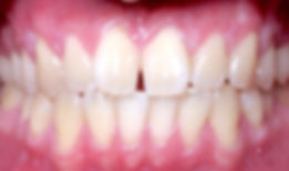 04_patient_orthodontics_before_edited.jp