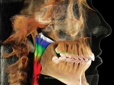 Side view of a 3D CBCT with the airway highlighted
