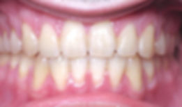 04_patient_orthodontics_after_edited.jpg