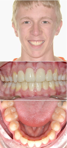 Patient face, front and lower teeth after treatment