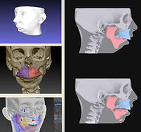 Before and after 3D images of a jaw surgery.