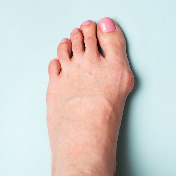 Bunion in foot. Valgus deformation from