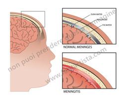 Illustrazione realizzata per articolo scientifico sulla meningite