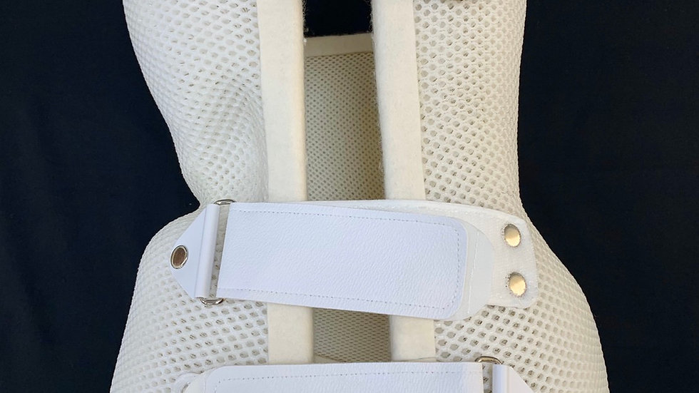 Splinting plate for scoliosis correction