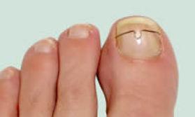 Nagelbeugel, orthonyxie, remaniet, nagel, ingegroeide nagel, voet, tenen