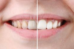 whitening or bleaching treatment ,before