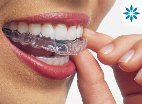 Best Reasons to Get Invisalign®