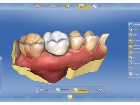 CEREC: A Closer Look at Everyone's Favorite Dental Tech