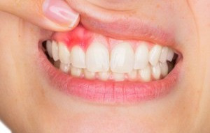 Facts About Gum Disease
