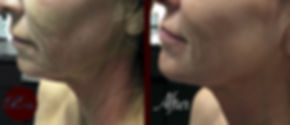micro-needling-before-and-after-side.jpg