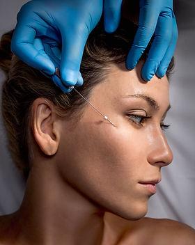 PDO Suture operation,face lifting surger