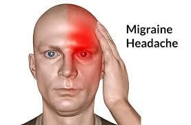 La migraine avec l'acupuncture