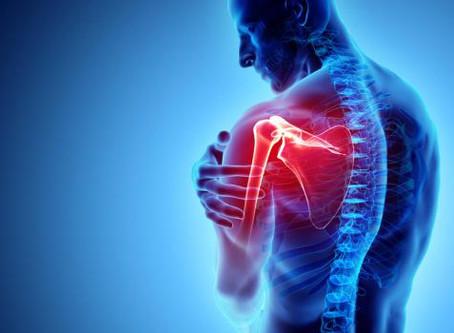 un cas intéressant -- douleur l'épaule