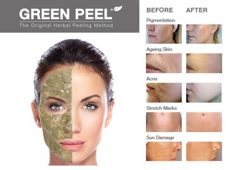 25% off Green Peel now through March!