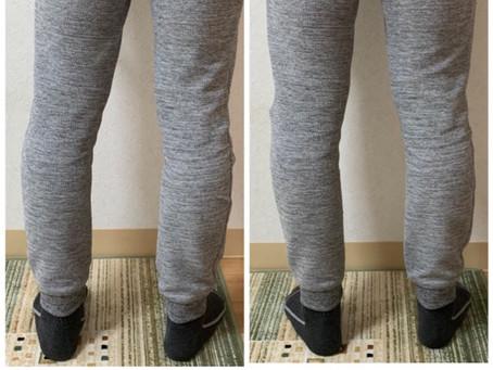 膝周りを施術したら、重心のバランスが良くなりました。