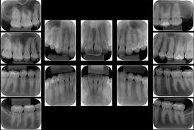 Radiografía Periapical Total