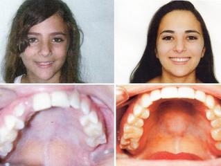 Caso de ortodoncia (frenillos) de nuestra clínica