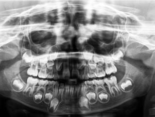 Radiografías para niños