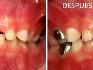 Odontología prostética para niños