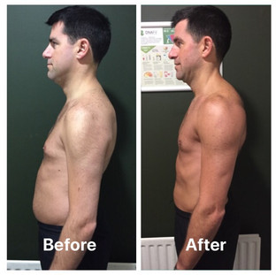 Philip weight loss side