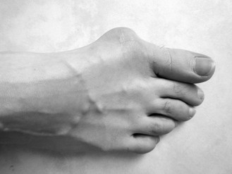 How to help a Hallux Valgus or Bunion